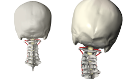 Normal versus Subluxated Cervical Spine 1500 width